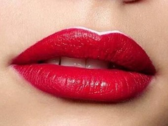 重唇矫正效果如何