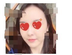 浙江绿城医院做射频除皱案例 脸上肌肤好看了
