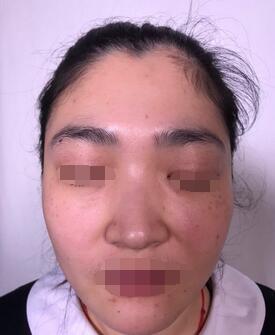 上海星和医疗美容诊所林佳音做的润百颜填充泪沟 显露精致眼睛