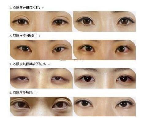 北京双眼皮失败修复手术的7位医生推荐 对比哪个医生技术好