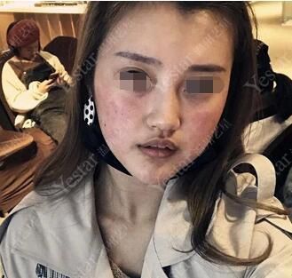 温州艺星医学美容医院缪水云做的果酸换肤 皮肤变嫩了好多