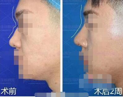上海伯思立整形徐晓斐和王艳隆鼻技术的各自风格 附加案例对比图