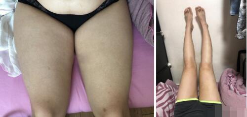 青岛诺德医院分享王志云医生的大腿吸脂案例 附有术前术后照片哟
