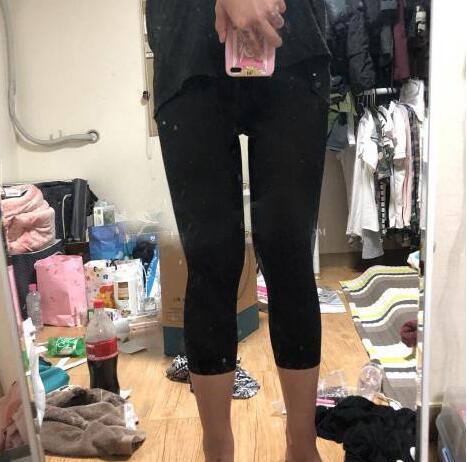 青岛诺德医院分享王志云医生的大腿吸脂案例