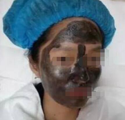 北京伊美尔长岛整形黑脸娃娃案例 真的很给力哦