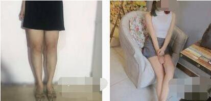 徐州华美整形水动力吸脂瘦腿案例 修长的大腿我也有了