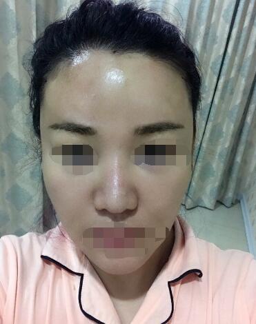 广州嘉悦整形光纤无痕溶脂瘦脸案例 胡葵葵的技术就是好