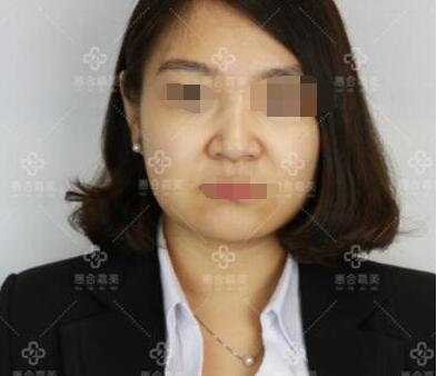 北京惠合嘉美整形玻尿酸注射隆下巴案例 跟大家分享变美的心得了