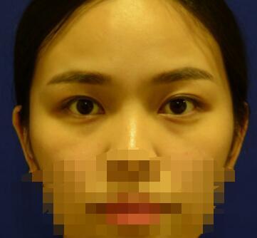 成都米兰柏羽整形朱武银做的双眼皮手术案例 分享变化图给大家看