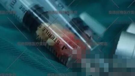北京奥德丽格医院做奥美定取出案例
