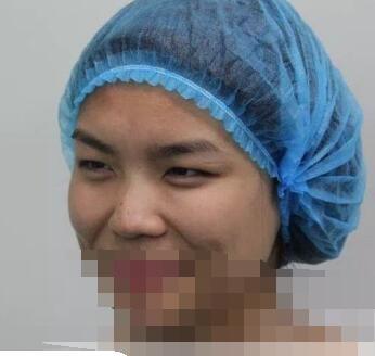 郑州集美医院做双眼皮手术案例 刘德辉医生技术精湛风格自然
