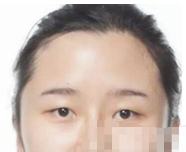 北京王府井医院做双眼皮案例 眼睛大了重拾自信