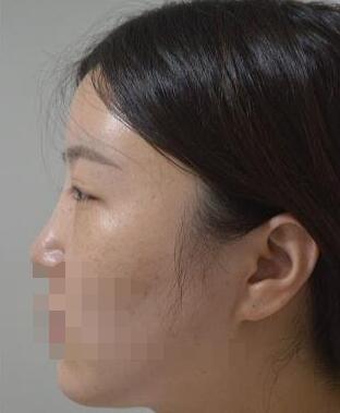 上海百达丽医院做耳软骨隆鼻案例 沈国雄医生技术口碑好