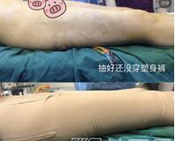 武汉叶子医疗美容医院王玉荣的大腿吸脂案例
