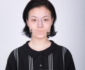 武汉爱思特医院做隆鼻修复案例 杨水斌医生技术口碑好