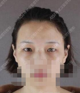 武汉爱思特医院做双眼皮整形+开眼角案例 眼睛更加的和谐了