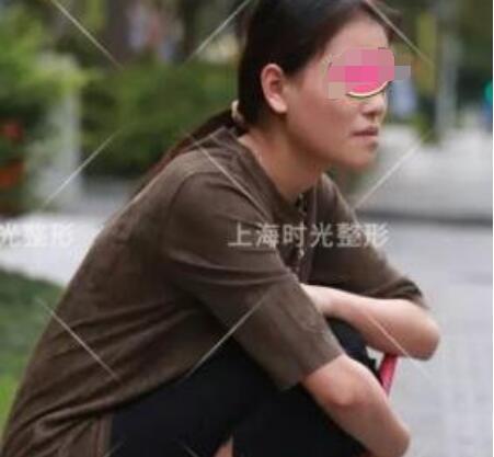 上海时光整形地包天矫正案例 何晋龙做的技术就是好 我很喜欢