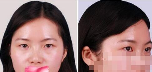 烟台鹏爱医院做肋软骨鼻整形案例 全新价格很亲民30000/例