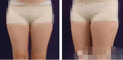 深圳美立方整形吸脂瘦大腿案例 术后的腿就是修长好看
