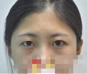 武汉亚太整形双眼皮手术案例 术后的弧度很好看