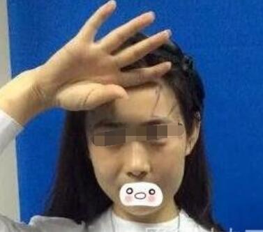 郑州东方女子医院做脂肪丰太阳穴案例 面部看起来饱满了