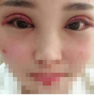 长沙亚韩医院做双眼皮手术案例 美丽的大眼睛再现