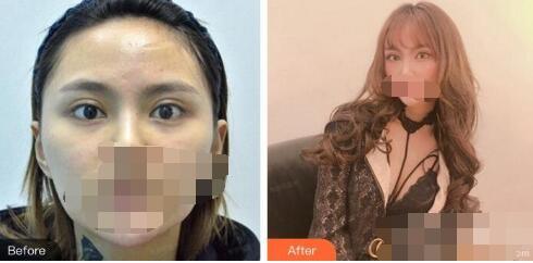 武汉爱思特医院做双眼皮修复案例 杨权明已胜过技术口碑好