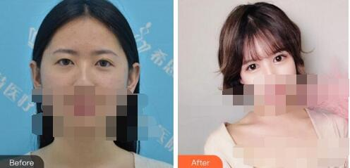 武汉爱思特医院做双眼皮手术案例