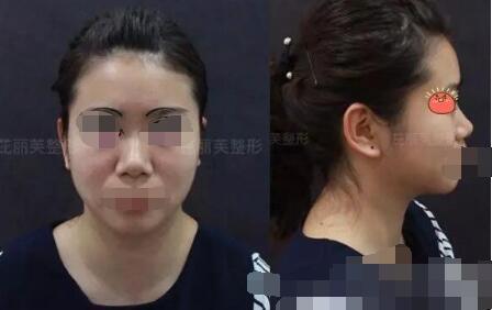 金华芘丽芙整形光纤溶脂+半肋鼻综合隆鼻案例 看看我神奇的变化吧