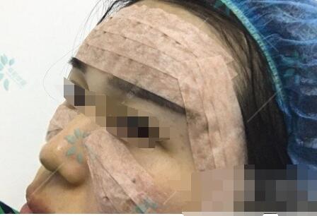 广州时光医院做自体脂肪全脸填充案例 穆宝安医生技术杠杠的