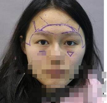 上海光博士整形眼综合整形手术案例 分享我的心得 术后十分满意