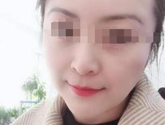 武汉伽美医院做拉皮手术案例 年轻的肌肤回来了 附有照片