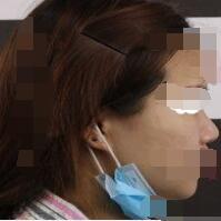 哈尔滨艾美丽整形隆鼻修复案例 术后2个月了我很满意