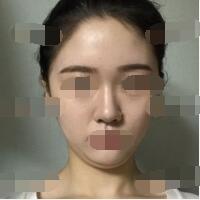 广州美聚源整形下巴吸脂+垫下巴案例 术后3个月的变化图来了