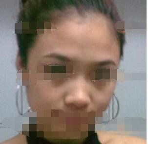 北京柏丽整形肋软骨隆鼻修复案例 分享术后两个月的变化