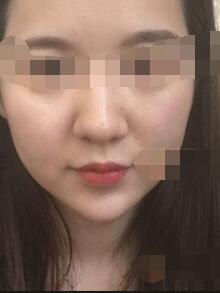 上海薇琳医疗美容医院鼻部修复案例 自然鼻型精致立体