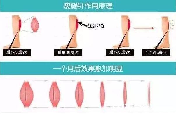 注射肉毒素瘦小腿需要多少钱一次