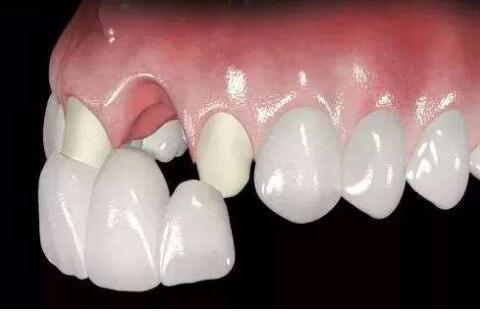 烤瓷牙是属于假牙吗