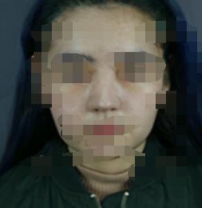 合肥华美整形肋软骨隆鼻修复案例 前后变化图来了