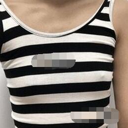 上海伊莱美医疗美容医院假体隆胸案例  柔软自然好身材