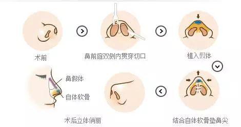 硅胶假体隆鼻手术效果能保持多久