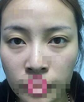 上海藝星醫療美容醫院雙眼皮+隆鼻+墊下巴案例 顏值爆表