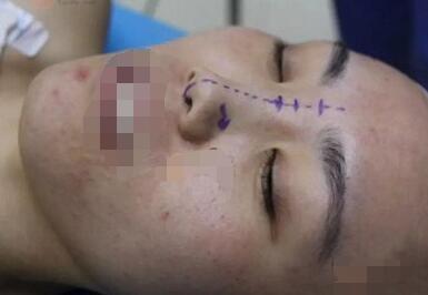 常州施爾美整形醫院肋軟骨隆鼻案例 精致鼻子自信十足