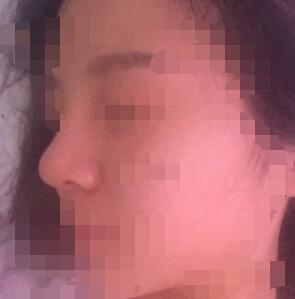 寧波美萊整形隆鼻案例 術后29天的側面圖來了