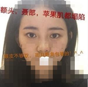 金華芘麗芙整形雙眼皮+隆鼻+脂肪填充案例 術后一個恢復非常好