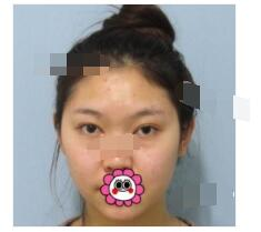 杭州维多利亚医院分享硅胶隆下巴案例 术后脸也立体上镜了附加图