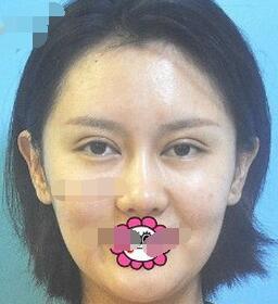 武汉壹加壹医疗美容医院埋线提升案例 脸变年轻很自然