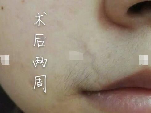 八月重点报道:纯分享面部疤痕修复