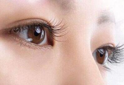 分享上眼睑下垂矫正过程