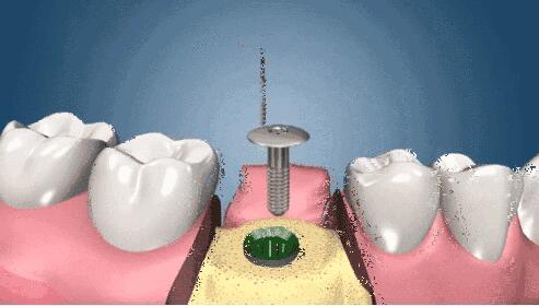 种植牙需要多少个月的时间就完成了